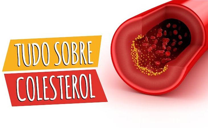 Mitos:  será mesmo verdade que colesterol é perigoso?