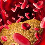 Governo americano retira colesterol da lista negra de perigos para o coração