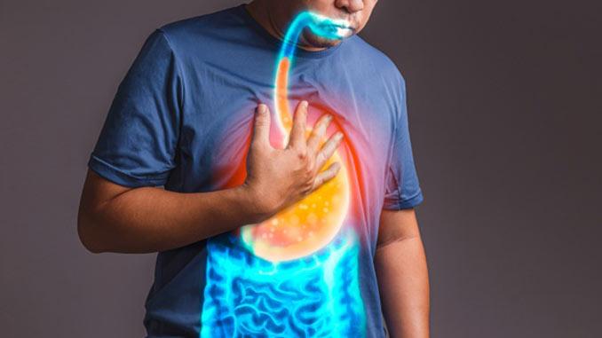 Refluxo gastroesofágico: causas, sintomas e tratamento da azia